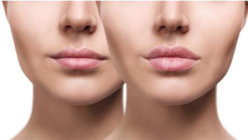 Corso evoluto labbra Full Lip 2 giorni
